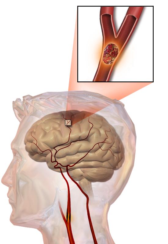 AVC causé par une thrombose