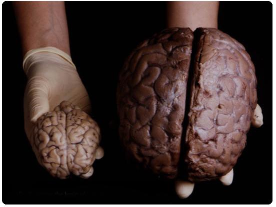 Comparaison de cerveau de mouton et d'humain